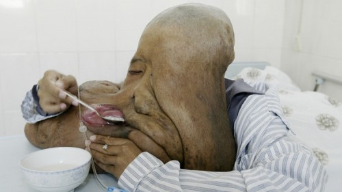 Huang Chuncai eats in his ward before his second operation to remove his tumours, which currently weigh around 10kg (22lbs), at a hospital in Guangzhou, southern China's Guangdong province, January 5, 2008. Huang, a 32-year-old native from a remote village in China's southern province of Hunan, says he is relieved after a part of his facial tumours, which originally weighed about 23kg (50.7 lbs), was removed last year. His second operation will remove another part of the tumours, which weighs 4.5kg (9.9lbs). Huang suffers from Neurofibromatosis, which is a genetic disorder of the nervous system that primarily affects the development and growth of nerve tissues. Picture taken January 5, 2008. REUTERS/Joe Tan (CHINA) - RTX5ANV