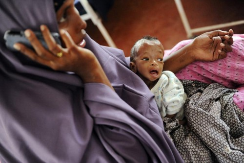 Somali refugee child Fatuma Dayoo is treated in the stabilization unit for complications from severe malnourishment, in the International Rescue Committee hospital at Hagadera settlement in Kenya's Dadaab Refugee Camp, August 31, 2011.  REUTERS/Jonathan Ernst