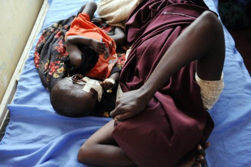 A Somali refugee child sleeps next to his mother as he receives treatment for complications from severe malnourishment in the stabilization unit of the International Rescue Committee hospital at Hagadera settlement in Kenya's Dadaab Refugee Camp, August 31, 2011.  REUTERS/Jonathan Ernst